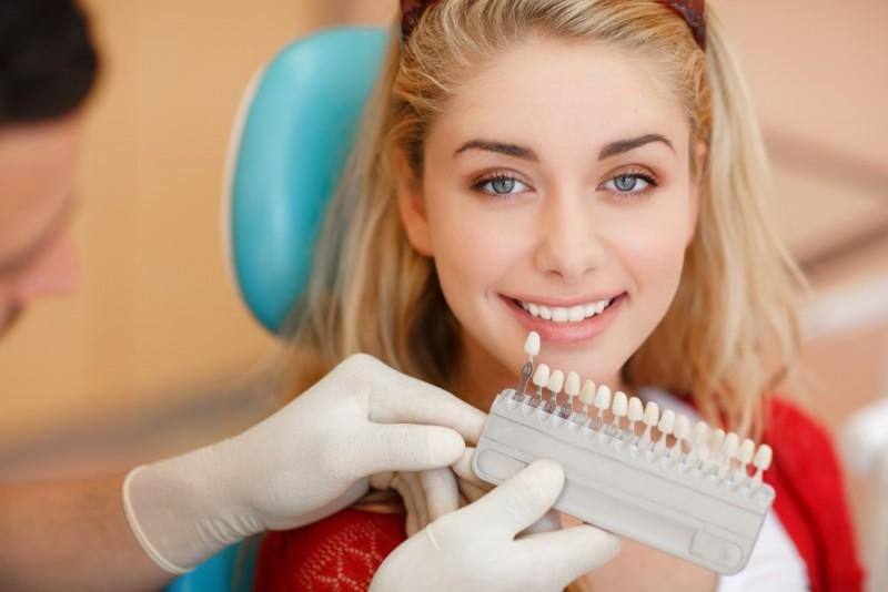 blanchiment dentaire, blanchiment des dents, blanchir les dents, dentiste, blanchiment